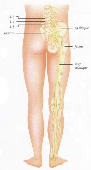 La sciatique for Douleur sur le cote exterieur du pied