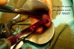 Aspiration Curetage à la Vacurette d'une grossesse arrêtée - Dr E. PRADOS