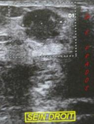 Echographie Cancer du sein. Dr E. PRADOS /  Med-sein