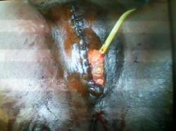 Infibulation: fermeture totale de l'orifice